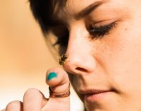 Live Bees in Woman's Eyes Weird, but NOT Unusual